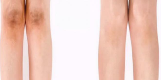 lighten dark knees in a few days by easy natural ways