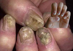 Tinea corporis treatment Symptoms and prevention